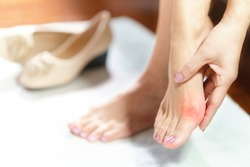 Woman feet problem. Closeup, Beautiful working woman's hand massaging her bunion toes in bare feet to relieve pain due to wearing pointy and narrow shoes. Medical condition - bunions (Hallux valgus).