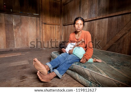 Woman from Amazonia breastfeeding. Seriously affected by strabismus.