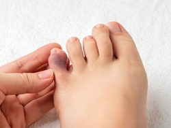 Woman hand touching little toe with purple bruise after home accident. Looking at bruised pinky toe of female person foot. Injury of foot little finger. Broken toe or phalange fracture. Top view.