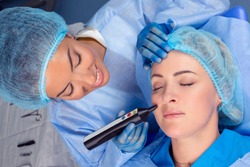 Woman having a non surgical procedure to remove nasolabial wrinkles with a laser device by a cosmetologist in a medical clinic. Thread lift procedure. Patient with eyes closed having lifting procedure
