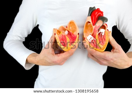 Artificial heart in humans Images and Stock Photos - Page: 2