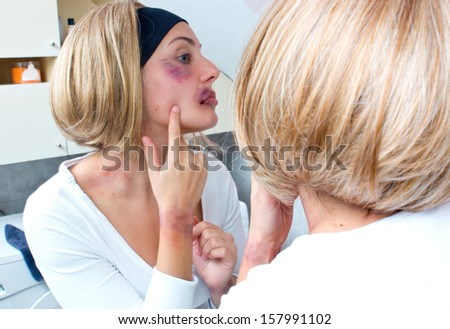 woman looking her bruises and injuries in front of the bathroom mirror #157991102