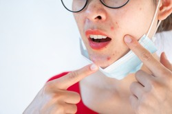 Woman pointing acne Inflamed occur on her face after wearing mask for long time during covid-19 pandemic. Wearing mask for prolonged periods can damage the skin.