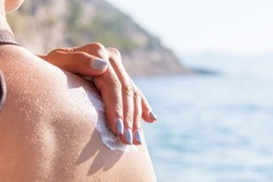 Woman rubs sunscreen on his shoulder. Against the background of the sea.