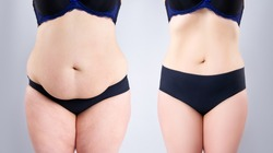 Woman's belly before and after weight loss on gray background, plastic surgery concept