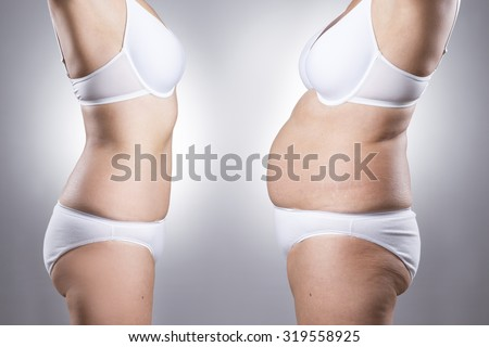 Woman\'s body before and after weight loss on a gray background