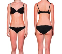 Woman's body with sunburn