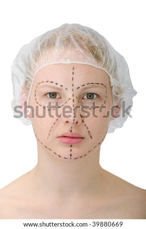 woman?s face before plastic surgery, face lift