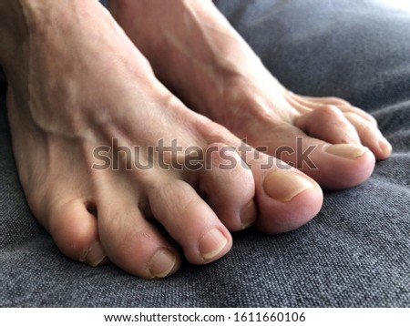 Woman's foot with hammer toe.