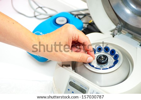 Woman\'s hand putting small tube in medical centrifuge
