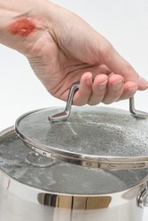 Woman's hand with burns by hot steam holds lid of pot with boiling water, burns of skin,  home accident concept, careless behavior with boiling water and hot steams, scalds on a skin
