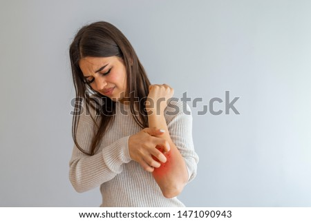 Woman Scratching an itch on white background . Sensitive Skin, Food allergy symptoms, Irritation. People scratch the itch with hand, Arm, itching, Concept with Healthcare And Medicine.