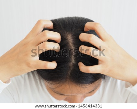 woman scratching her head cause of have a lice or louse and dandruff and scurf problem of scalp and hair treatment of peeling from allergy or lichen using for shampoo product concept.
