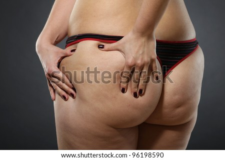 Woman showing Cellulite - bad skin condition