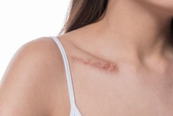 woman  showing surgery scar. Scars removal concept, close up, selective focus