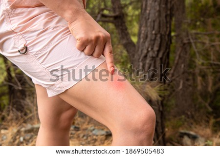 woman shows her finger at an insect bite. Woman leg with insect bite in park. concept of protection from insect bites. beware of insect bites, carrier of infectious diseases Photo stock ©