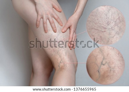 Woman shows leg with varicose veins. Magnifying the image. The concept of human health and disease. #1376655965