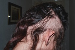 Woman suffering from alopecia areata condition. Hair loss concept