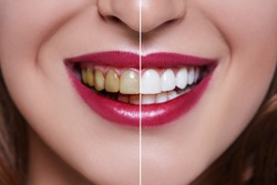 Woman Teeth before and after dental treatment. Teeth Whitening. Happy smiling woman. Dental health Concept. Oral Care, teeth restoration. Bad teeth.