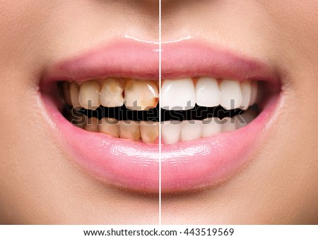 Woman Teeth before and after dental treatment. Teeth Whitening. Happy smiling woman. Dental health Concept. Oral Care, teeth restoration