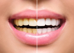 Woman Teeth Before and After Whitening. Happy smiling woman. Dental health Concept. Oral Care concept
