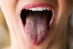 Woman Tongue With Bad Bacteria Candidiasis And Pain