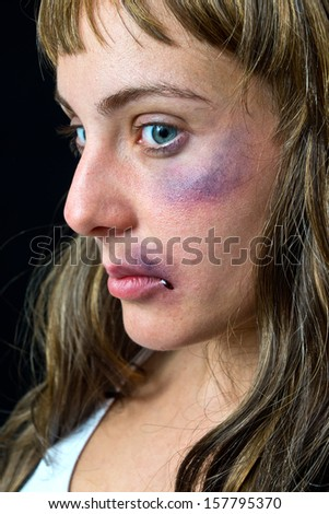 woman with bruises victim of domestic violence or accident