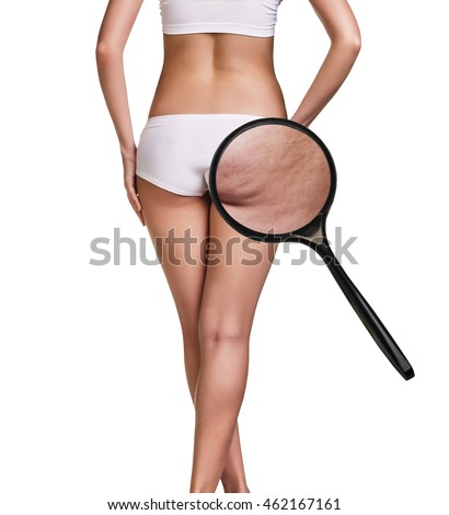 Woman with cellulitis on buttocks Foto stock ©