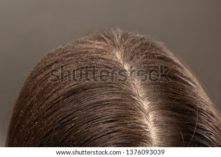 Woman with dandruff in her dark hair on grey background, closeup #1376093039