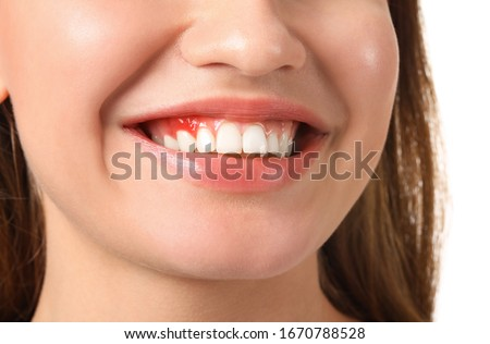 Woman with gum inflammation, closeup Stok fotoğraf ©
