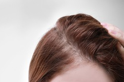 Woman with hair loss problem on white background, closeup