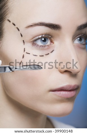 woman with marks on her face gets surgery
