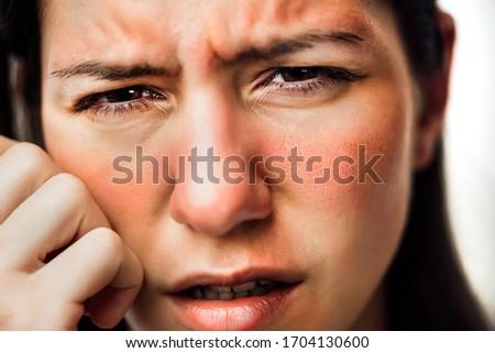 Woman with painful hot sunburn,facial skin redness problem,photosensitivity.Chemical burn,allergic reaction.Rosacea,dermatological condition,eczema.Tanning damage,sun protection.Suntan irritation.Rash