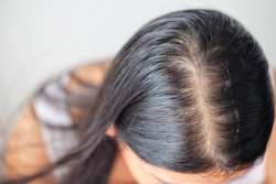 Woman with problem thin hair.