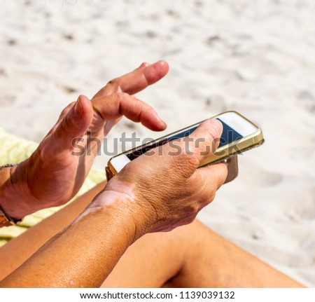 Woman with vitiligo on her hands is using a smartphone and gets suntanned on the beach #1139039132