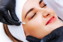 Woman without wrinkles. Facial rejuvenation. Correction of mimic wrinkles with botulinum toxin. Beauty injection.