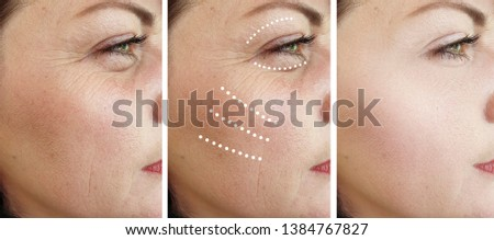 woman wrinkles   after cosmetology procedures