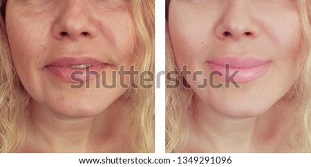 woman wrinkles   after procedures collage