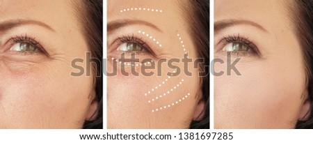 woman wrinkles   after regeneration collage procedures