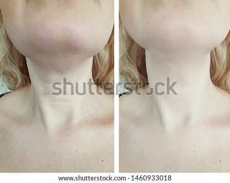 woman wrinkles   after treatment saggy