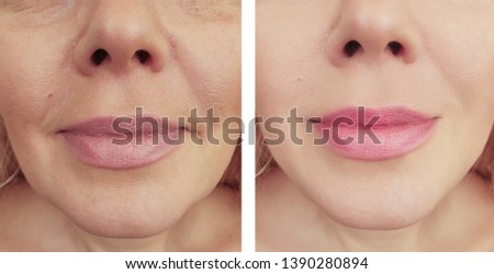 woman wrinkles before and after removal procedures #1390280894