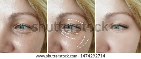 woman wrinkles eyes   after treatment