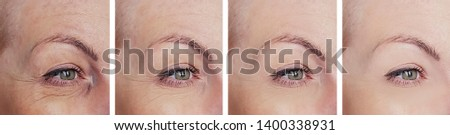 woman wrinkles eyes before and after collage