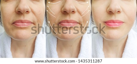 woman wrinkles face   after correction collage