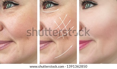 woman wrinkles face   after correction procedures