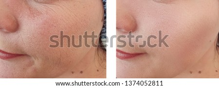 woman wrinkles face   after procedures