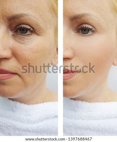 woman  wrinkles face   after the procedures