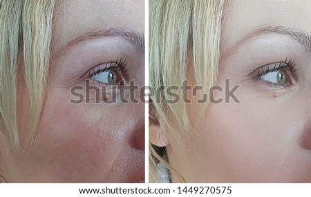 woman wrinkles face   after treatment