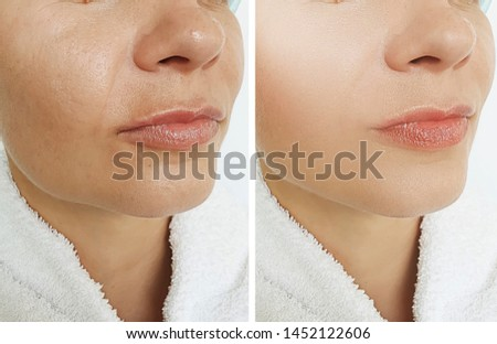 woman wrinkles face before and after treatments