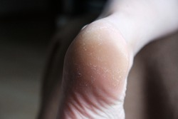Womans feet with cornea and cracked skin on dry heel befote treatment.